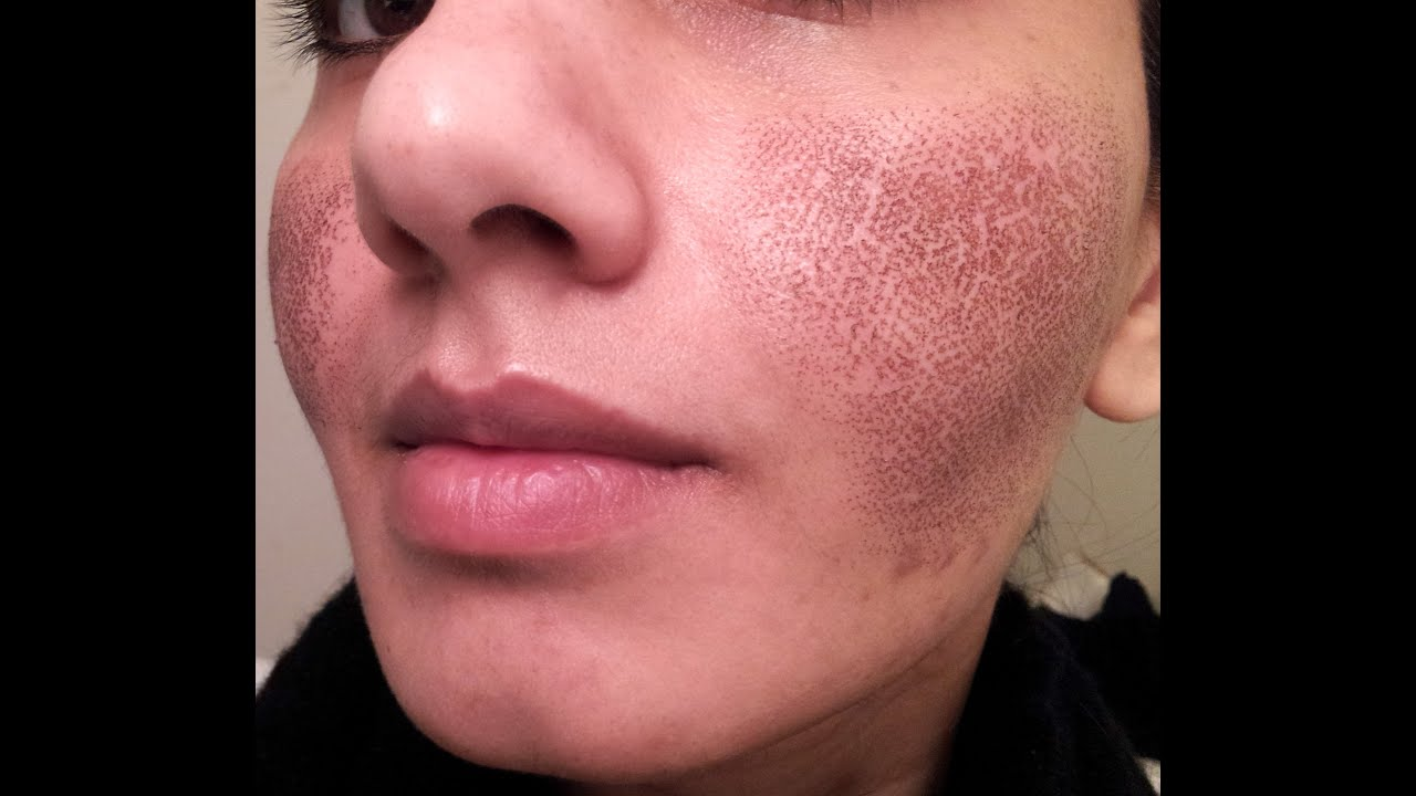 skin doctors no more pores review