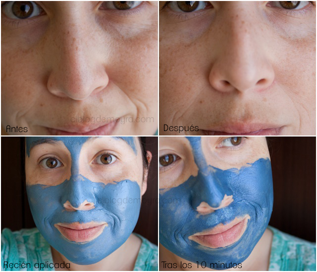 loreal blemish rescue mask review