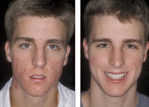 proactiv reviews before and after