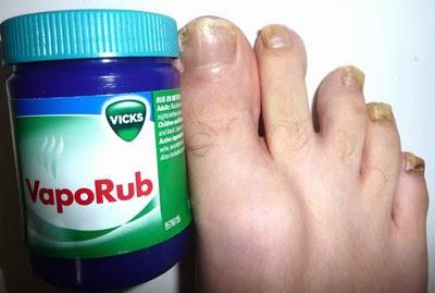 vicks for toenail fungus review